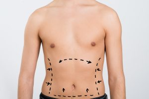 NuVista Plastic Surgery has completed many successful liposuction procedures for men in Utah.
