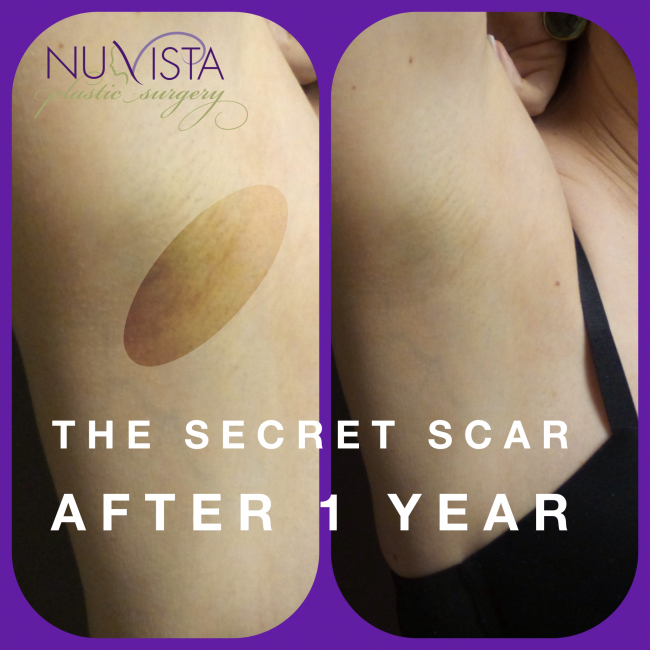 secret scar 1 yr collage