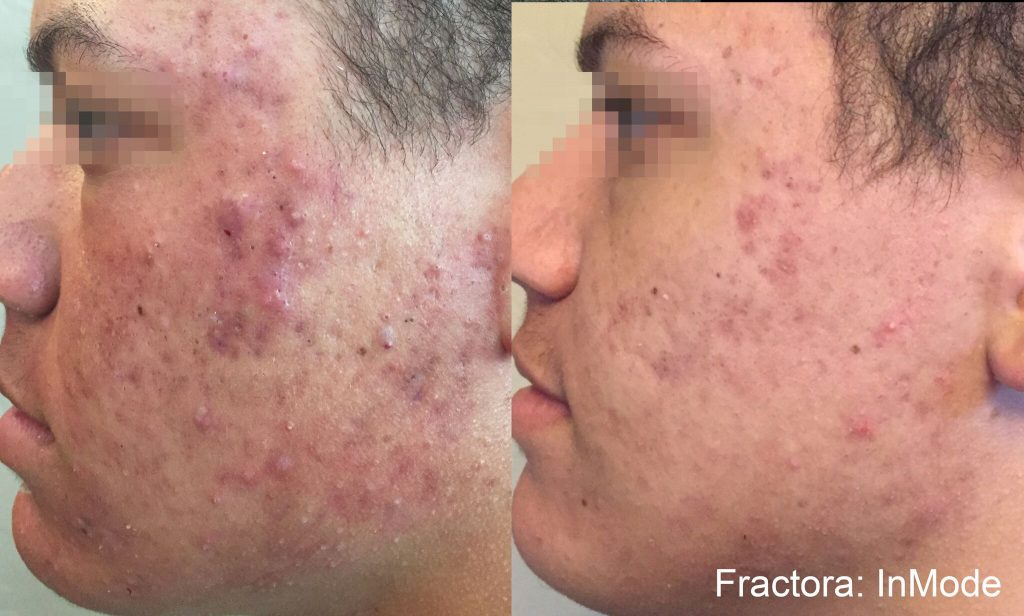 Side by side comparison of before and after Fractora™ skin treatment